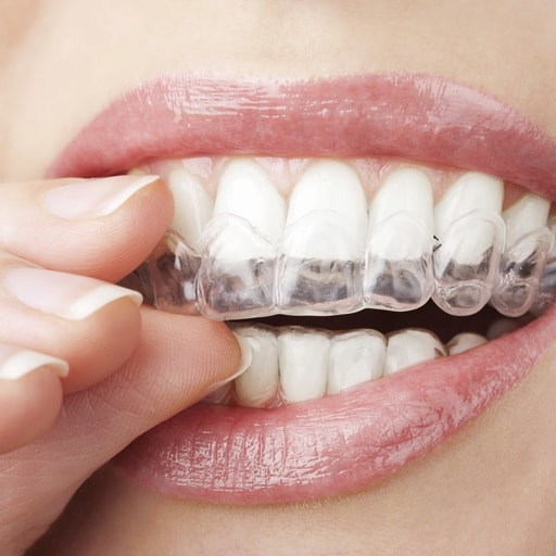 A closeup of teeth with Invisalign custom trays being put on them.