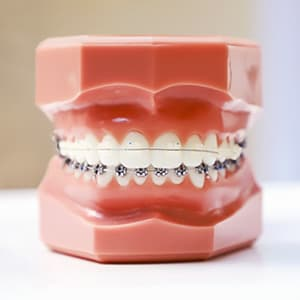 A mouth model wearing metal and ceramic braces